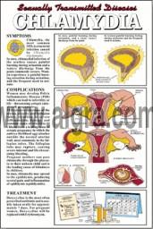 Chlamydia Poster