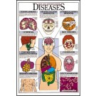 Aids and Opportunistic Diseases Poster