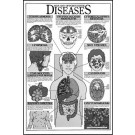 Aids and Opportunistic Diseases Study Sheets